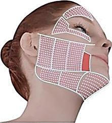 WELL-DONE SONIC お顔の施術範囲