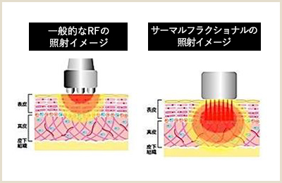 Thermal Fractional